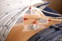 Eine Anwendungsform der Elektrotherapie