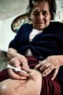Diabetes erhöht Darmkrebsrisiko