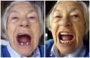 Zahnpflege nach den Wechseljahren