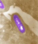 Enthalten Speisen Glutamat, können Listeriose-Bakterien dieses für sich nutzen..